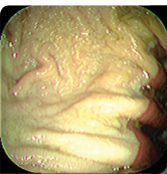 Grade 0 normal stomach lining pink is the glandular tough lining and white coloured lining is the more sensitive upper portion of the stomach.